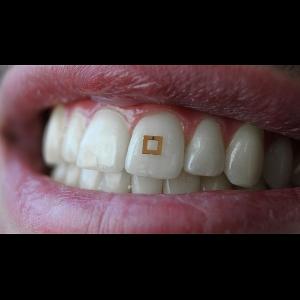 Sensor Mungil Berteknologi RFID Mengendalikan Pola Makan Anda
